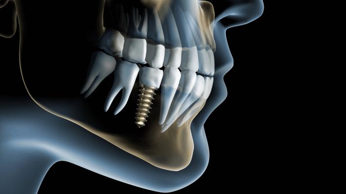 Титановые зубные имплантаты